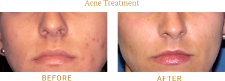 Acne Before and After treatment from Dermatologist