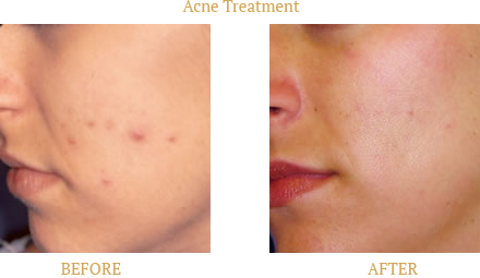 Acne Before and After treatment from SkinProvement Dermatology New York