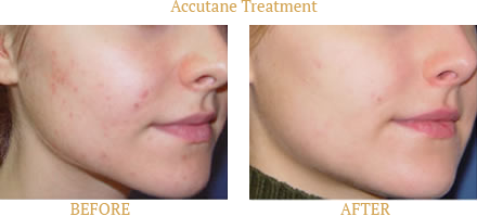 Acne Before and After results in New York