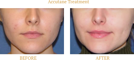 Acne Before and After real patient results done by SkinProvement Dermatology New York