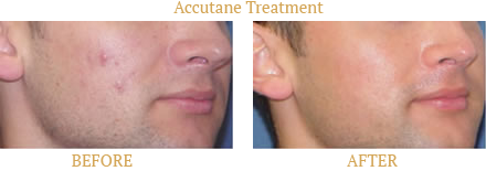 SkinProvement Dermatology New York best results for Acne