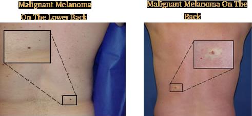 Malignant Melanoma On The Back