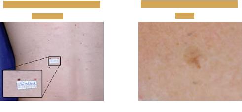 Malignant Melanoma On The Mid-Back and Chest