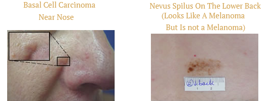 Basal Cell Carcinoma Near Nose and Nevus Spilus On The Lower Back