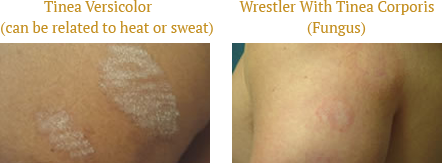 Tinea Versicolor and Wrestler With Tinea Corporis