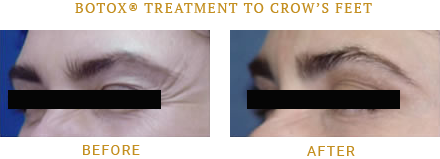 Wrinkles Before and After treatment by SkinProvement Dermatology New York