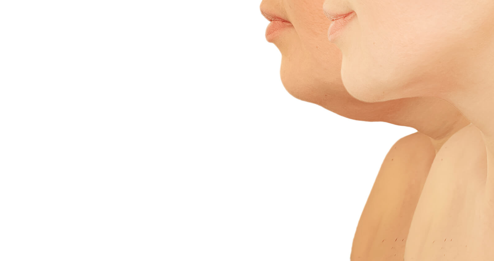 Kybella for Double Chin in New York Area