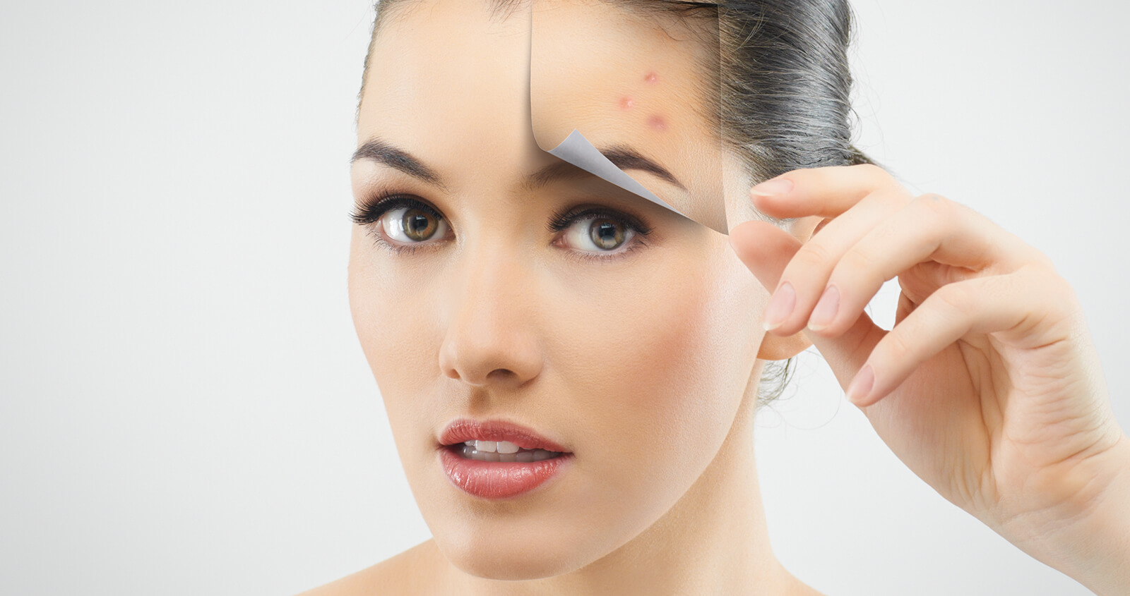 Ways to Get Rid of Acne in New York City Area